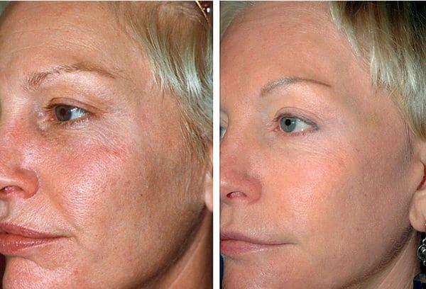 лазерное омоложение лица фото до и после