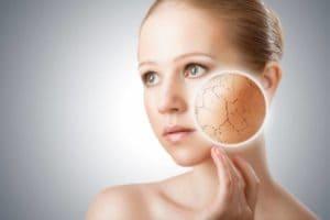 Обветривание лица — как защитить кожу?