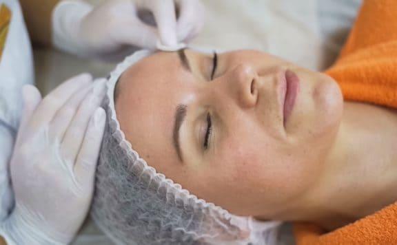 Салициловый пилинг для очищения кожи