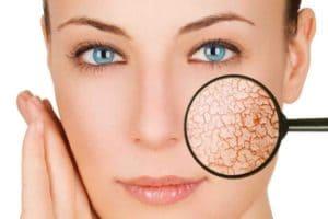 5 советов о том, как избавиться от шелушения кожи лица