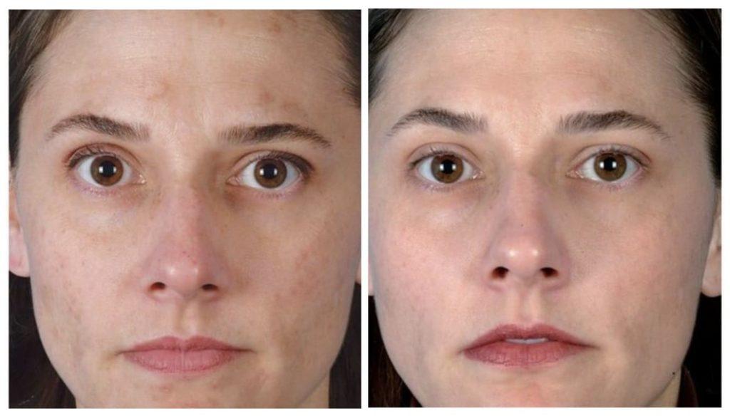Лазерная чистка лица до и после