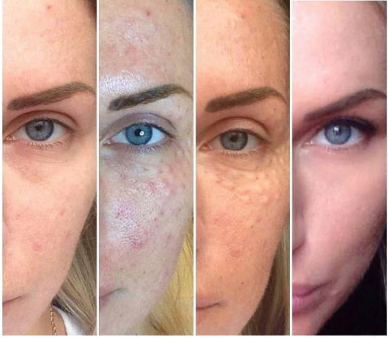 Биоревитализация кожи гиалуроновой кислотой до и после
