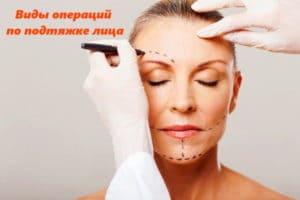 Виды операций по подтяжке лица