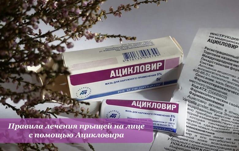 Правила лечения прыщей на лице с помощью Ацикловира