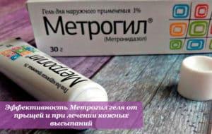 Эффективность Метрогил геля от прыщей и при лечении кожных высыпаний