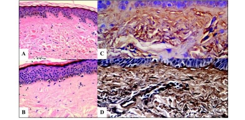 Гистологический срез кожи до и после адапалена