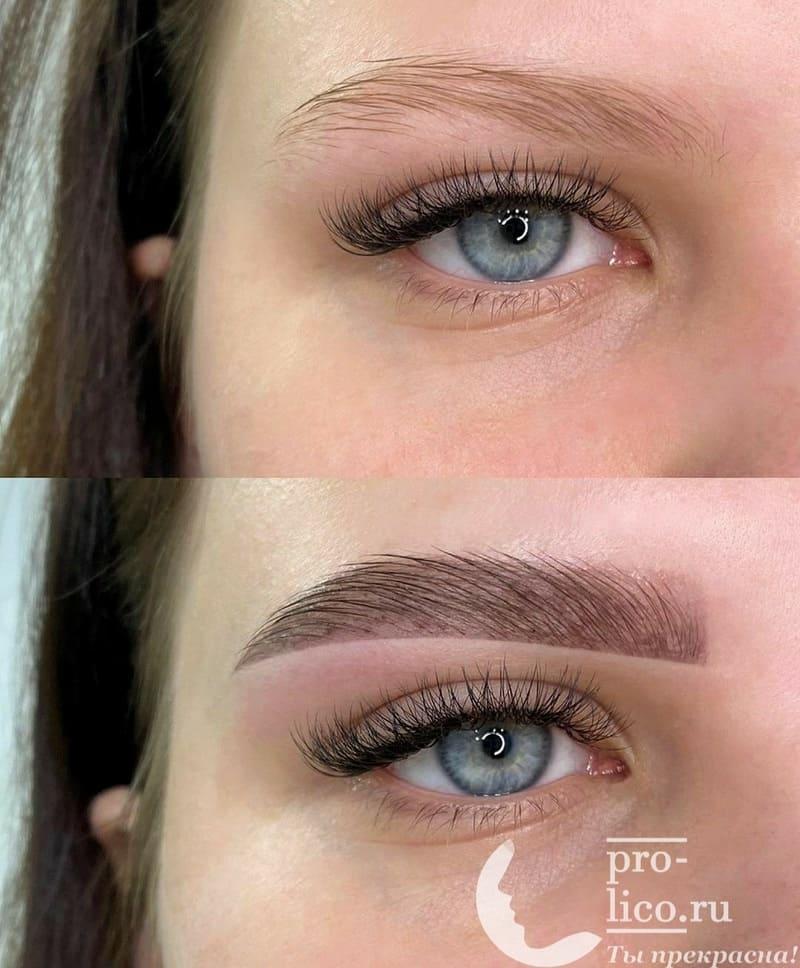 Фото до и после коррекции бровей