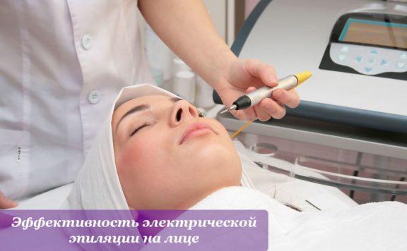 Эффективность электрической эпиляции на лице