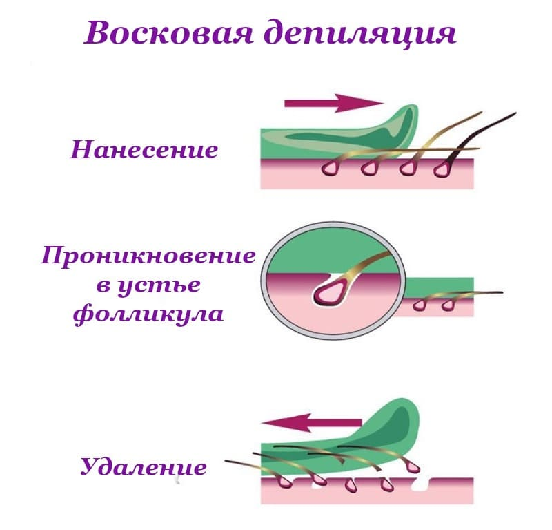Схематичное изображение восковой депиляции