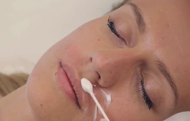 Нанесение увлажняющего средства после восковой депиляции около рта