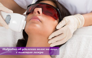 Подробно об удалении волос на лице с помощью лазера