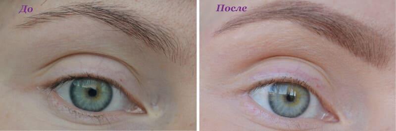 Eva Mosaic Карие очи фото до и после