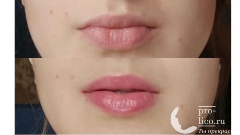 Мой отзыв на активную сыворотку для увеличения объема губ Eveline