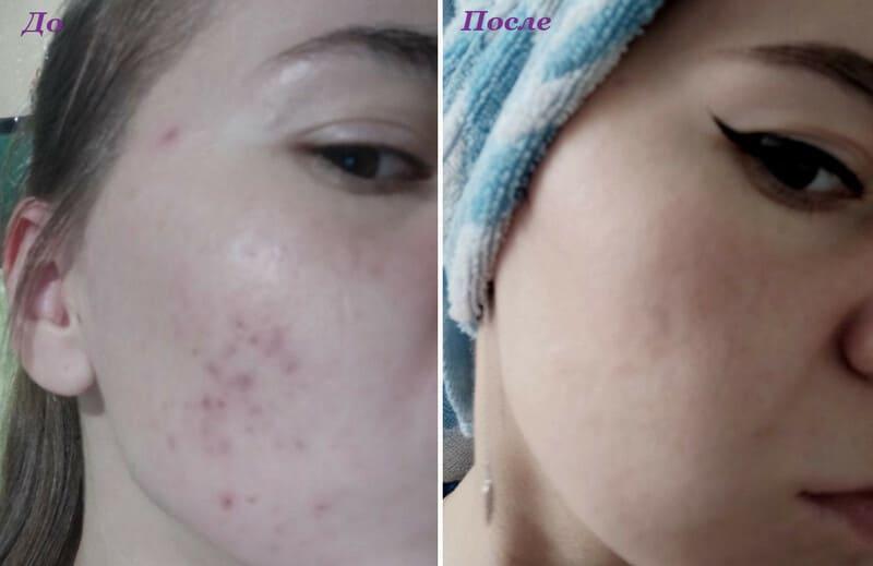 Далацин до и после