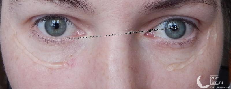 Мой отзыв на гель-патч для кожи вокруг глаз от Витэкс серии Vitamin Active