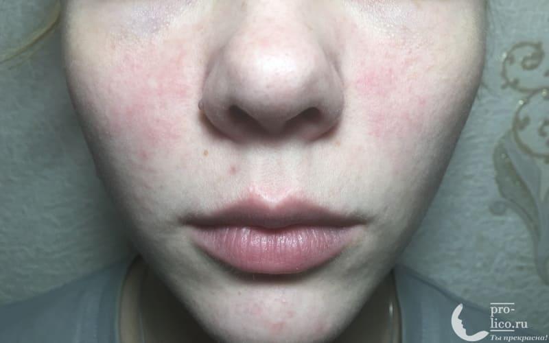 Aqua-спрей «Витамины для лица» от Novosvit фото до и после