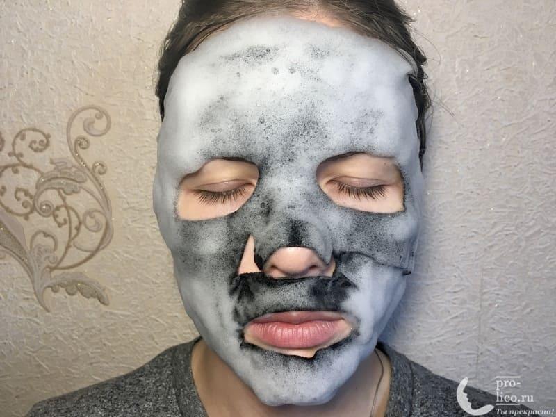 Черная пузырьковая маска для лица «Древесный уголь» от Skinlite на лице