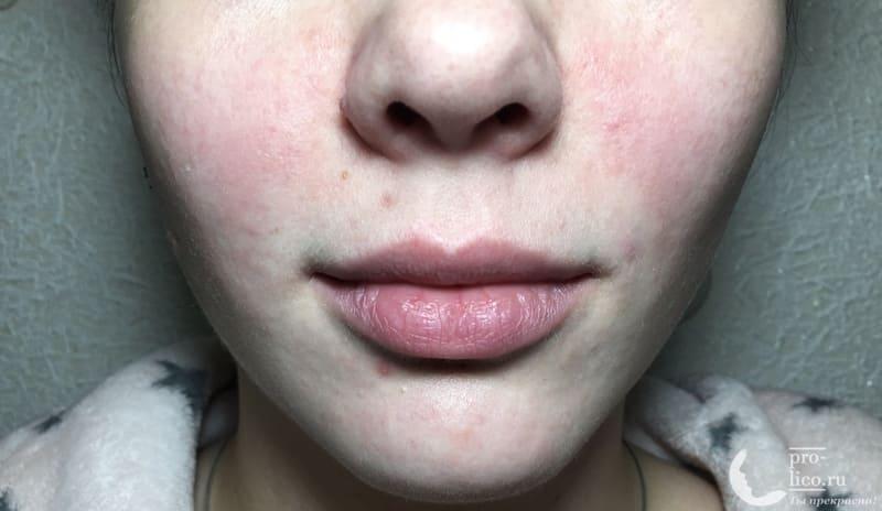 Гель для лица Карина с комплексом аминокислот и микроэлементов фото до и после