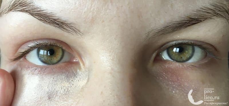 Кремовый консилер/Cream Concealer от Stellary фото до и после