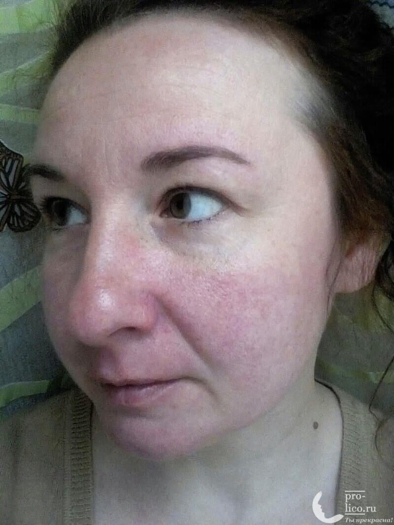 """Мой отзыв на корейскую тканевую маску для лица Skinapple """"С огурцом. Увлажнение"""" фото до и после"""
