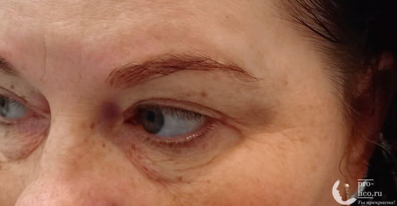 жидкие ультраувлажняющие патчи для глаз Compliment с экстрактом арбуза и гиалуроновой кислотой фото до и после