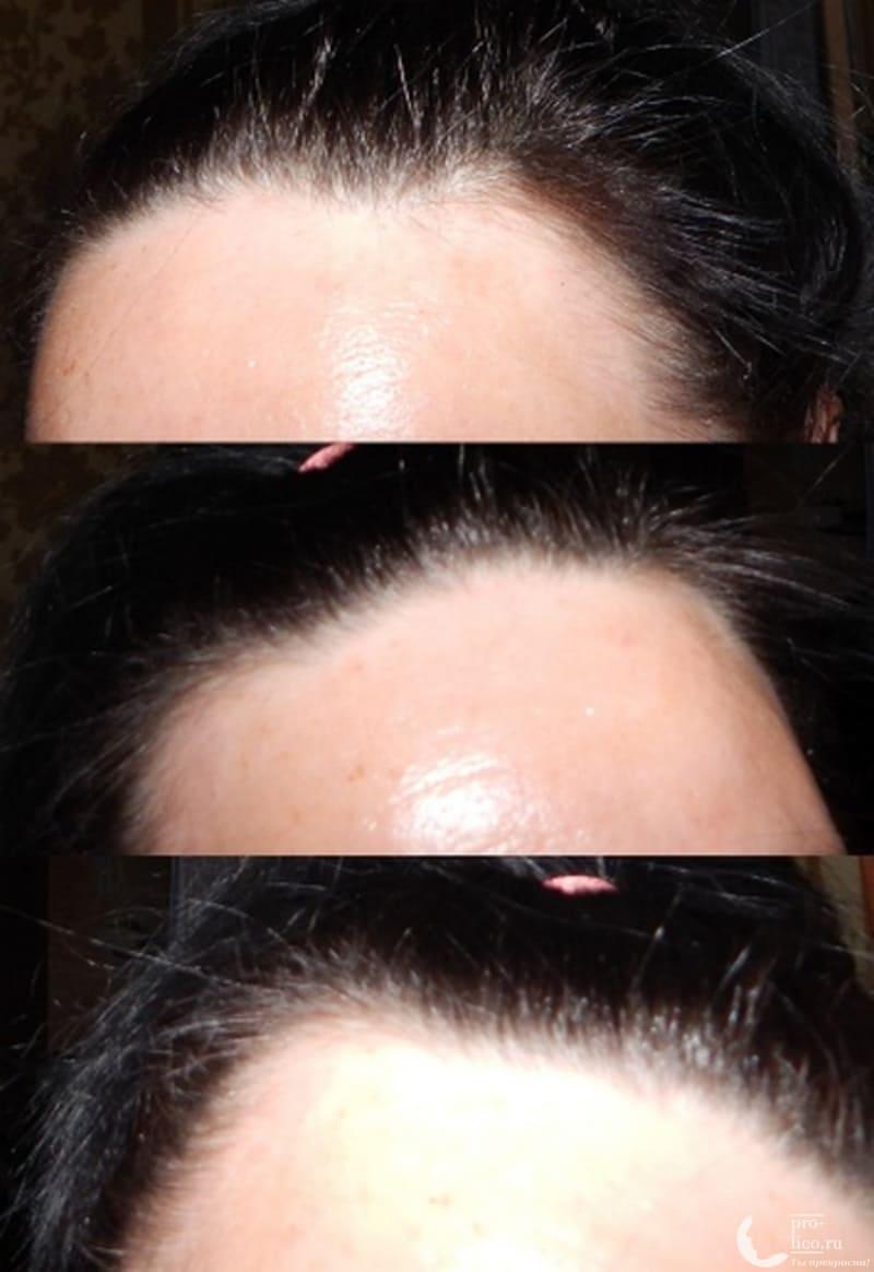 Никотиновая кислота для волос Sens фото до и после
