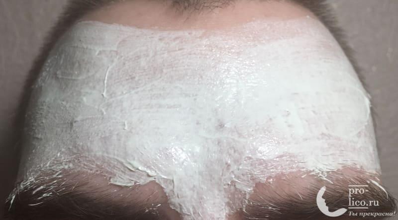 Салициловая маска от прыщей от компании Пропеллер на лице
