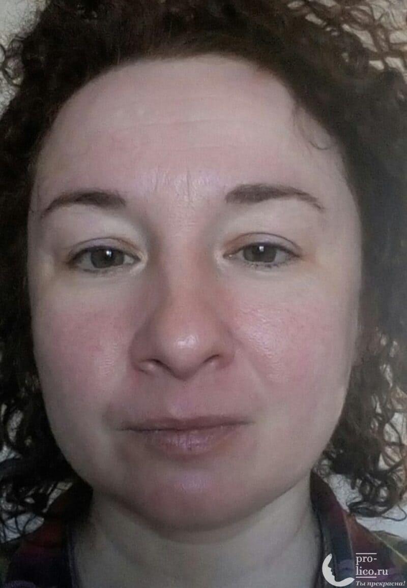 """Тканевая маска для лица Meadow с ледниковой водой """"Камелия и аргановое масло"""" от Mi-Ri-Ne фото до и после"""