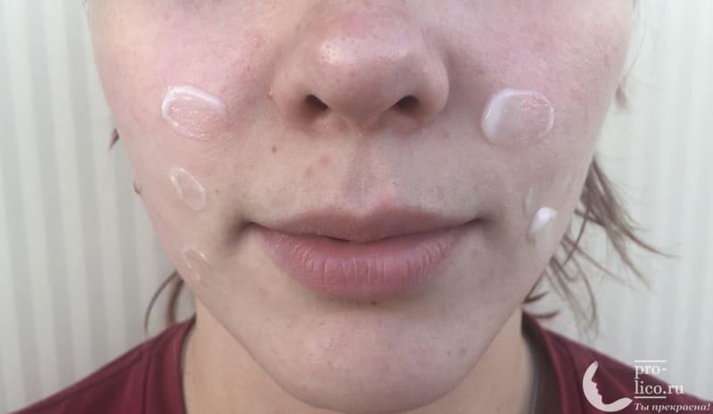Гиалуроновая сыворотка-вуаль для лица Витэкс Perfect city skin «Совершенная кожа в условиях города» фото до и после
