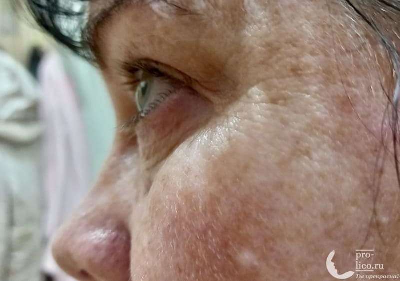 Гиалуроновый крем-филлер для кожи вокруг глаз от Novosvit нанесение