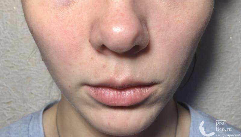 Крем для лица «Невская косметика Морковный» для сухой и чувствительной кожи фото до и после