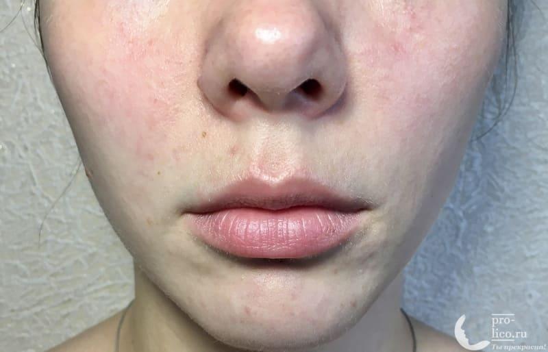 Крем для лица «Невская косметика Персиковый» для сухой и чувствительной кожи до и после