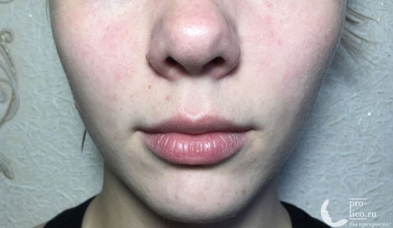 Крем для лица «Невская косметика Спермацетовый» для сухой и нормальной кожи до и после