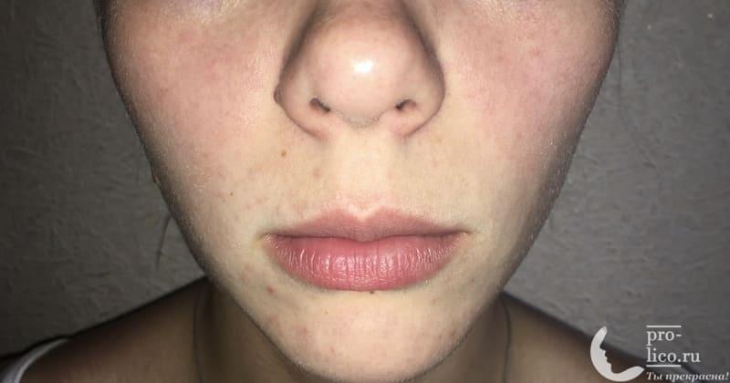 Крем для лица «Невская косметика Женьшеневый» фото до и после