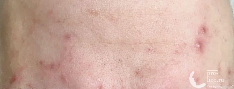 """Маска-пилинг для лица и шеи Organic Spa """"Омолаживающая"""" Floresan фото до и после"""