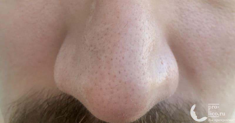 Очищающие полоски для носа Пропеллер с активированным углем фото до применения