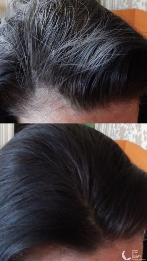 Сухой шампунь Прелесть Extra Fresh фото до и после