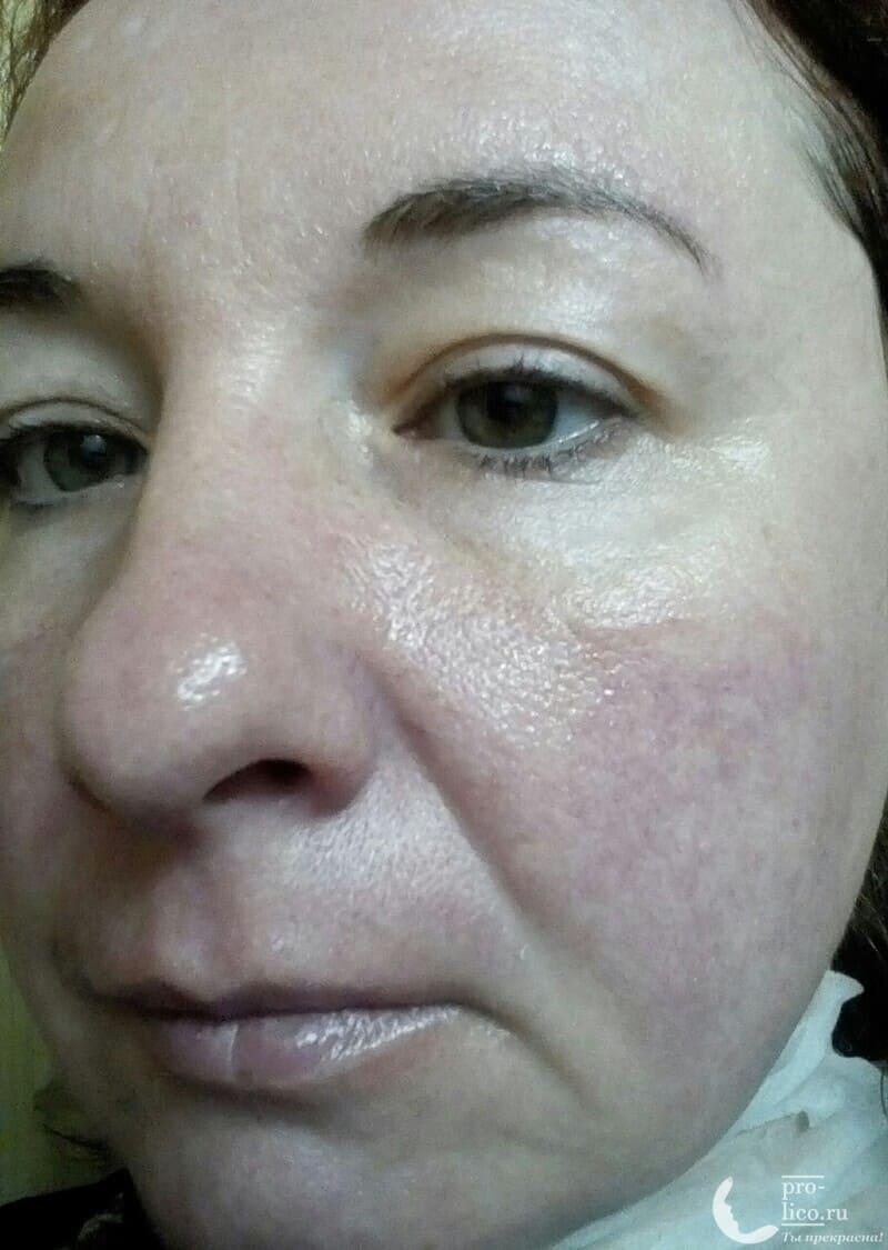 Тканевая маска для лица SkinApple Stem selI moisturizing mask омоложение и отбеливание фото до и после