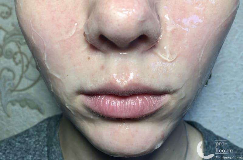 Увлажняющая гелевая маска Compliment с муцином улитки на коже