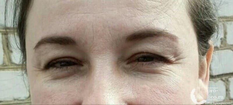 """Гиалуроновый крем-филлер для кожи вокруг глаз """"Mediva"""""""