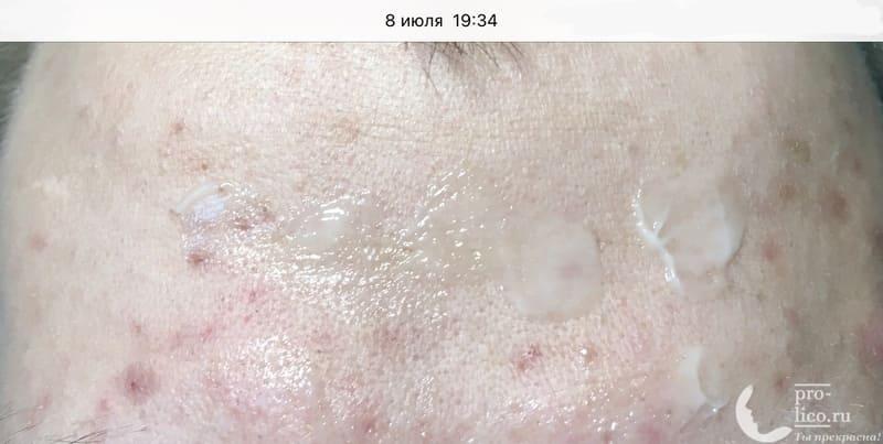 Крем для лица Чистая линия Аква-крем Мгновенная матовость Идеальная кожа эффект