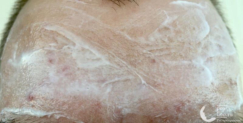 Лифтинг-маска для лица Банька Агафьи «Контрастная тонизирующая» фото до и после