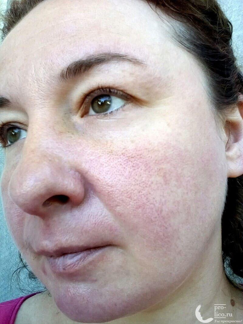 """""""Увлажняющая ампульная маска. Увлажнение и очищение"""" SkinApple фото до и после"""