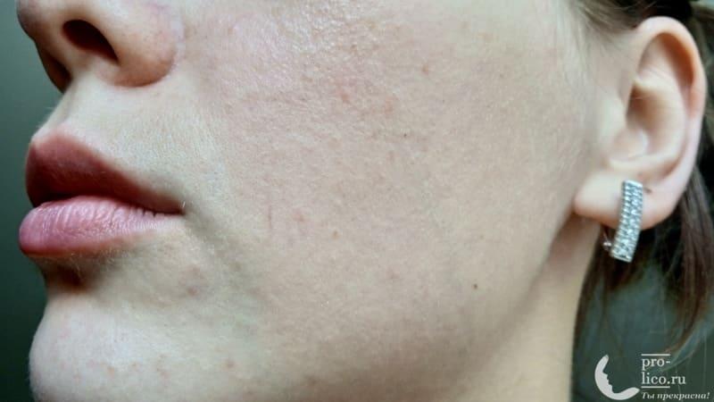 Крем для лица Чистая линия дневной увлажняющий для нормальной и комбинированной кожи эффект