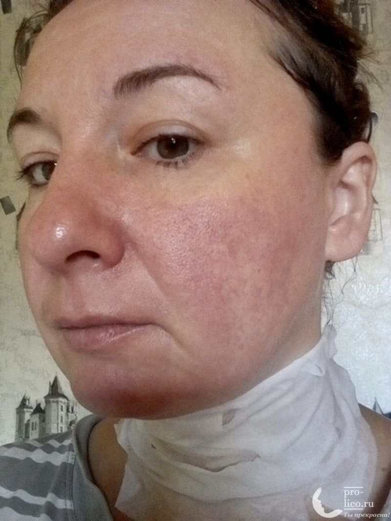 Ампульная тканевая маска с экстрактом икры от корейского бренда Jigott фото после