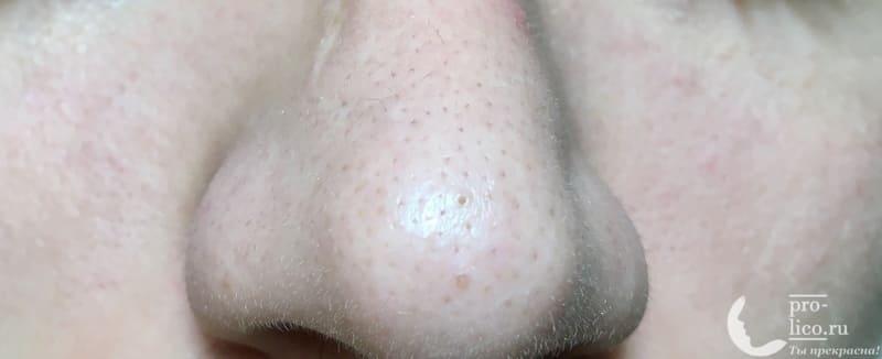 Аппарат для ультразвуковой чистки лица, фонофореза и лифтинга кожи с ионизацией MOMAN кожа носа до применения