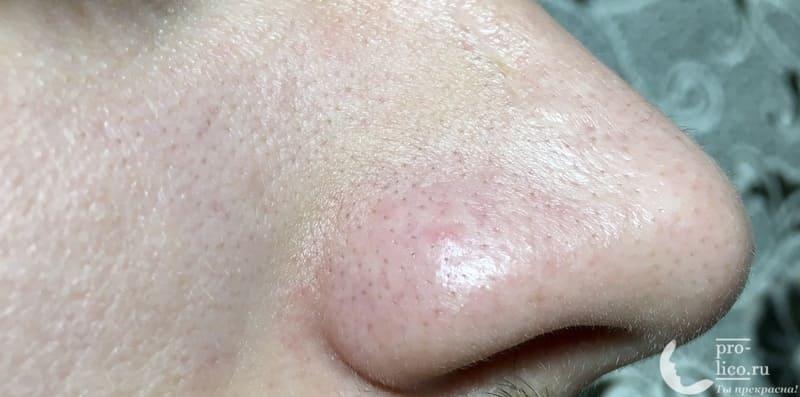 Аппарат для ультразвуковой чистки лица, фонофореза и лифтинга кожи с ионизацией MOMAN нос до применения