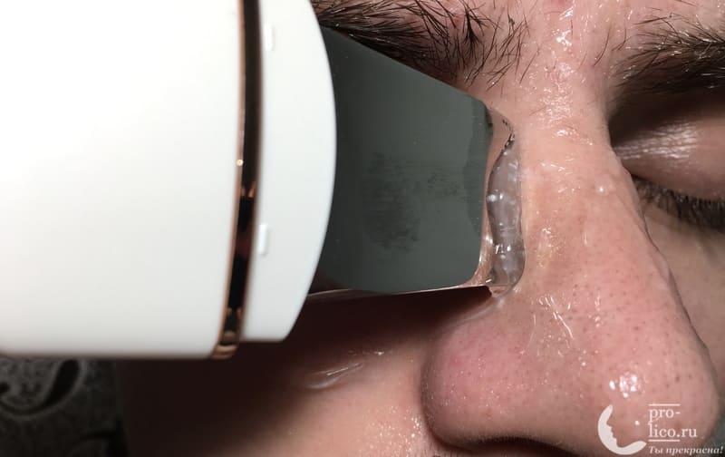 Аппарат для ультразвуковой чистки лица, фонофореза и лифтинга кожи с ионизацией MOMAN очистка носа