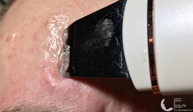 Аппарат для ультразвуковой чистки лица, фонофореза и лифтинга кожи с ионизацией MOMAN очистка лба