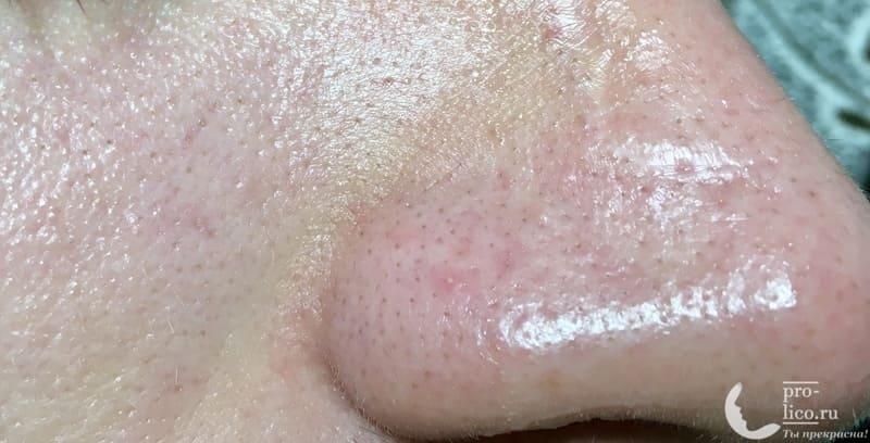 Аппарат для ультразвуковой чистки лица, фонофореза и лифтинга кожи с ионизацией MOMAN после очищения